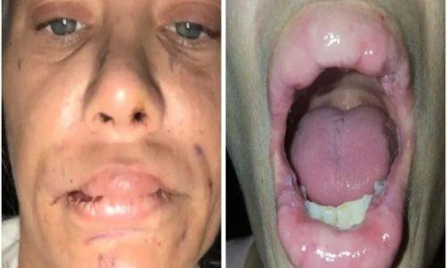 Πήγε να φουσκώσει τα χείλη της με σιλικόνη αλλά κάτι δεν πήγε καλά...Όταν δείτε το αποτέλεσμα θα φρίξετε! - Sex
